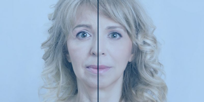 Photo of woman showing before and after botox injectables